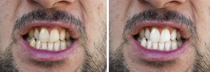 Prima e dopo lo sbiancamento dei denti