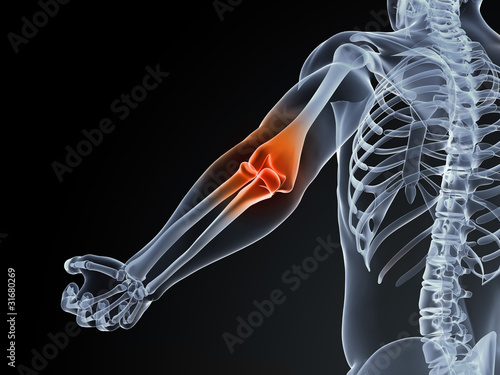 3d rendered medical illustration of an elbow bursitis