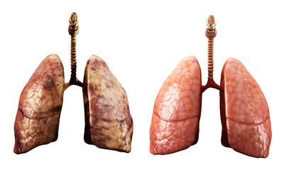healthy and rotten  lungs