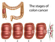 Colon cancer, eps8