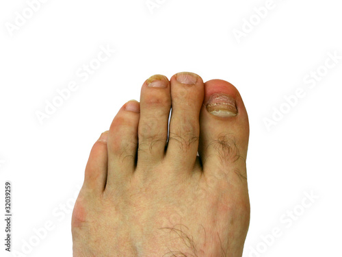 Toe nail with bruise