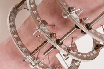 Orthopedic medicine, external fixator