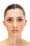 beauty concept before and after retouch poster