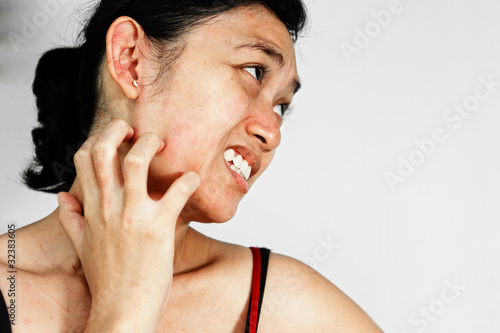 Woman scratch face with skin rash