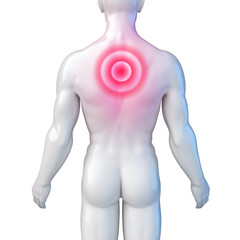 Männlicher Oberkörper – Rückenschmerz