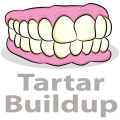 Tartar Buildup on Teeth