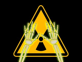Skeleton hands with symbol of radiation warning