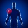 Männlicher Oberkörper – Schulterschmerzen