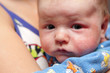 Eczema on face of newborn