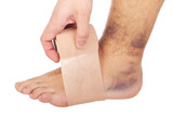 Bandaging a sprained ankle poster