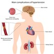 Hypertension complications, eps8