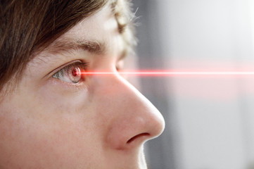 Eye Laser