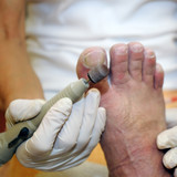 Podiatry - using a tool