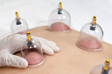 Multiple cup of medical cupping therapy