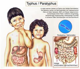 Typhus.Magen-Darminfektion bei Kindern