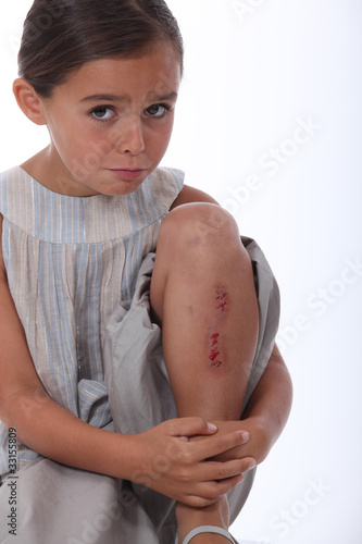 a little girl with a  wounded leg