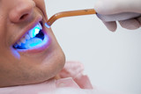 Patient receiving dental bleaching