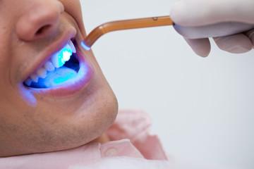 Patient receiving dental bleaching