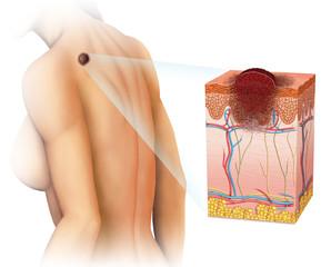 melanoma de espalda