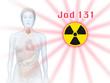 radioaktives Jod, Schilddrüse und Frau mit Organen