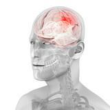3d rendered medical illustration of a brain tumor poster