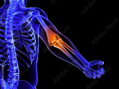 3d rendered medical illustration of a bursitis