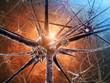 Leinwanddruck Bild - Viral encephalitis , 3d illustration