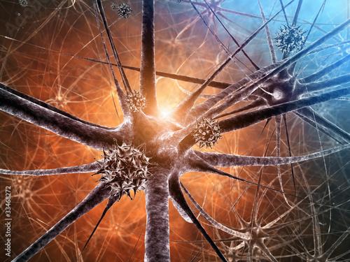 Leinwanddruck Bild Viral encephalitis , 3d illustration