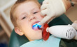 dental filing of child tooth by ultraviolet light
