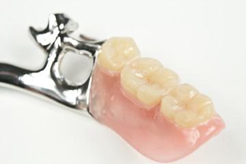Zahnersatz, Unterkiefersattel mit Klammern