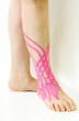 ancle contusion and therapeutic tape