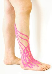 ancle contusion and therapeutic tapes