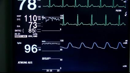 EKG-Monitor