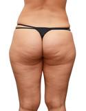 cellulite buttocks poster