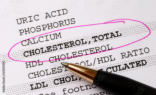 Focus on the cholesterol in a blood test report