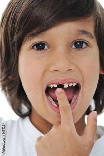 Lost milk tooth, cute boy with long hair