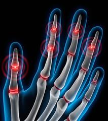 Arthritis 3