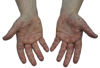Hand, Foot and Mouth Disease 1