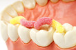 gesunde zähne #19