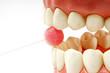 gesunde zähne #23