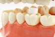gesunde zähne #21