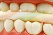 gesunde zähne #20