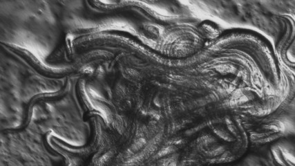 Caenorhabditis elegans