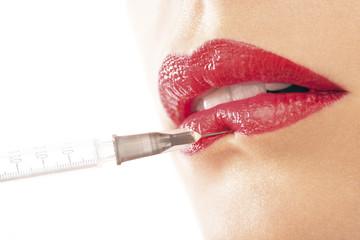 lippen botox
