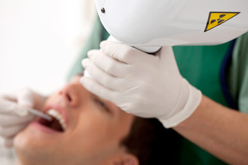 Dental X-ray Detail