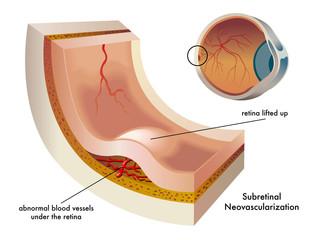 Neovascolarizzazione sottoretinica
