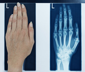 x-ray picture left hand