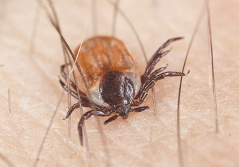 Tick feeding on human, extreme close up