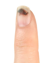 Finger with Bruised Nail (Subungual Hematoma)