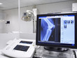Leinwanddruck Bild - x-ray picture of a knee